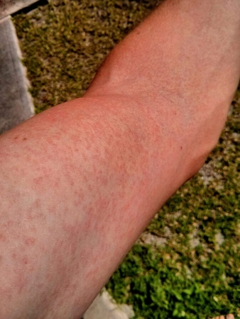 Éruption cutanée sur un bras due au virus Zika
